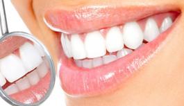 Эффективное отбеливание зубов: безопасно ли это?
