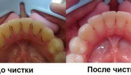 Зубной камень — причины и удаления